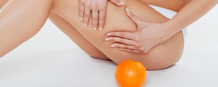 Cellulite e ritenzione idrica, sono la stessa cosa?