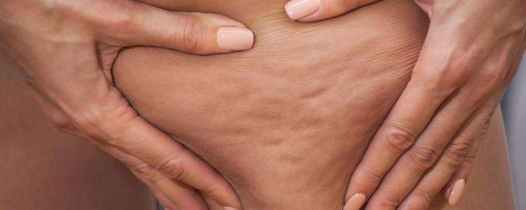 Le cause della cellulite